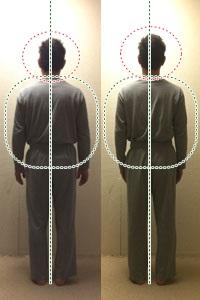 整体後の背骨の状態
